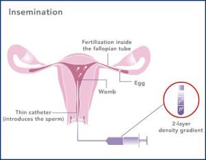 insemination