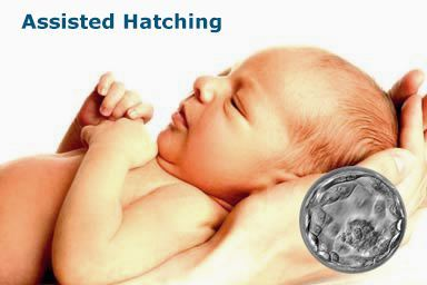 assisted-hatching babies